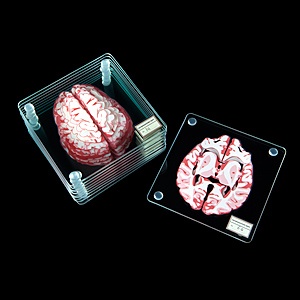 Huir brain specimen coasters black